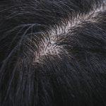 頭皮マッサージで抜け毛や薄毛、顔のリフトアップを防ぐ
